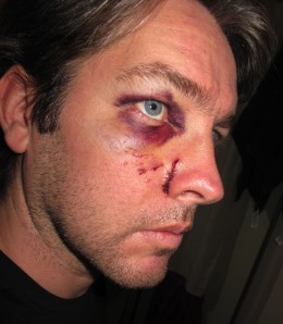 Ian Fox after a real Edinburgh street attack last year (photograph courtesy of Ian Fox)