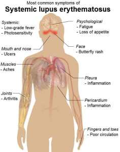 Wikipedia's illustration of lupus
