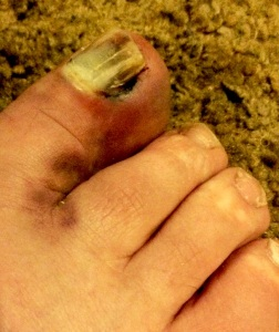 My damaged big toe